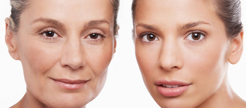 Hyaluronic Acid Everything You Need To Know About This Unsung Hero