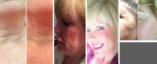 Non Surgical Facelift London Thread Lift 1024x418 1